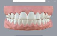 Овој стартап за 3Д печатење им помага на ортодонтите да прават евтини протези за заби