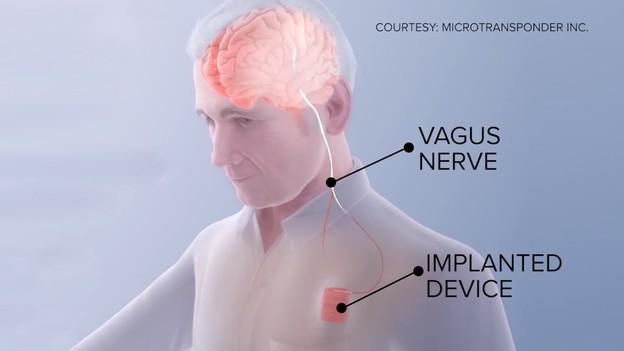 Американски научници направија имплант за закрепнување од мозочен удар