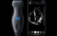 Со џебниот скенер Butterfly iQ секој може сам да си направи ултразвук на целото тело