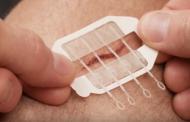 Научници создадоа вистински патент за затворање рани