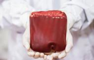 Научници претворија крвна група А во универзална