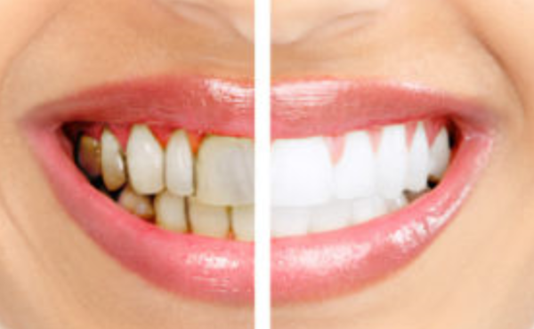 Научници создадоа гел кој ја обновува глеѓта на забите